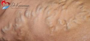 symptom-varicose-vein copy