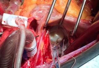 Geçirilmiş kalp krizlerinde ölümcül bir sorun:  İskemik Mitral Kapak Yetmezliği